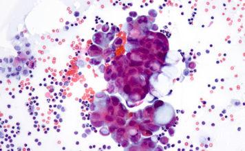 Cytologie endobronchique : prélèvements, techniques, diagnostics
