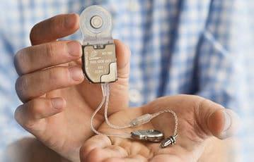 Déficit et appareillage : implants d'oreille moyenne