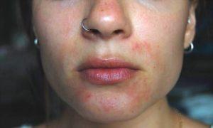 Dermatite atopique (Suite)