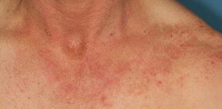 Dermatite allergique de contact (Suite)