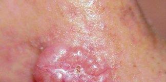 Cancers cutanés épithéliaux