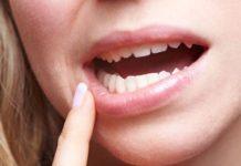 Ulcération ou érosion des muqueuses orale et génitale