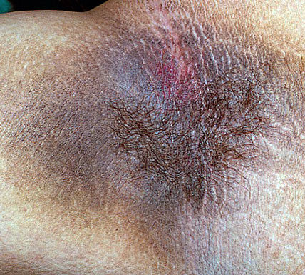 Dermatoses paranéoplasiques