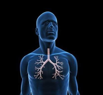 Dilatations des bronches