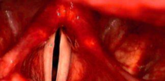 Dysphonie spasmodique