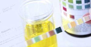 "Examen cyto-bactériologique des urines ""ECBU"""