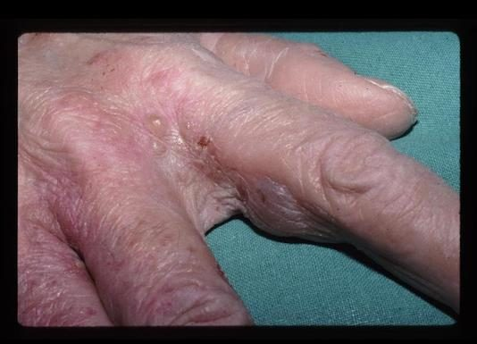 Ectoparasitoses (poux et gale) et piqûres d'insectes