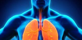 Embolie pulmonaire : histoire naturelle, diagnostic, traitement