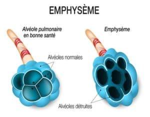 Emphysème pulmonaire Grands syndromes anatomocliniques (Suite)