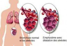 Emphysème pulmonaire Grands syndromes anatomocliniques