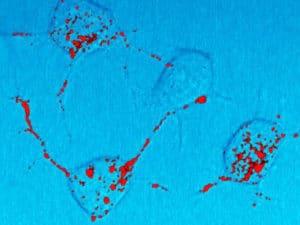 Maladies à prion ou encéphalopathies spongiformes transmissibles (Suite)