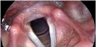 Anatomie descriptive, endoscopique et radiologique du larynx