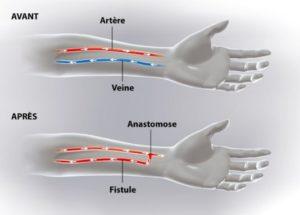 Fistules artérioveineuses durales intracrâniennes