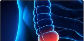 Appendicite aiguë et ses complications