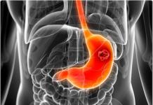 Cancer de l'estomac