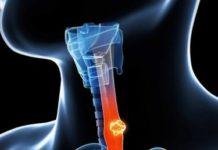 Cancer de l'œsophage