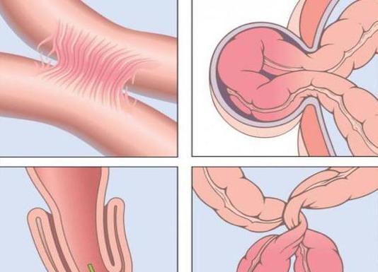 Occlusions intestinales du grêle et du côlon