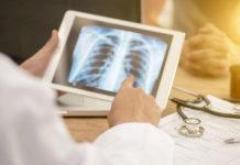 Génétique et médecine prédictive en pneumologie