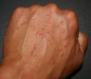 Granulomes à corps étrangers exogènes et endogènes