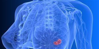 Tumeurs bénignes du sein
