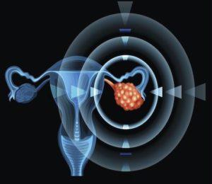 Tumeurs du revêtement épithélial de l'ovaire
