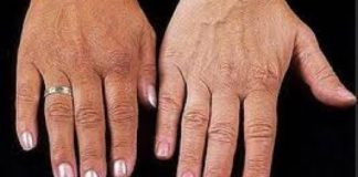 Hémochromatose : manifestations cliniques, enquête génétique et traitement