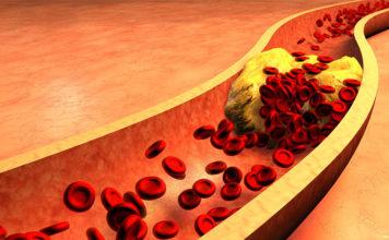 Hyperlipidémie des diabétiques