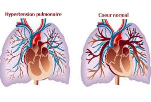 Hypertension artérielle pulmonaire primitive