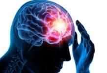 Imagerie fonctionnelle dans l'épilepsie