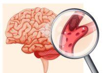 Imagerie par résonance magnétique de diffusion et de perfusion et ischémie cérébrale