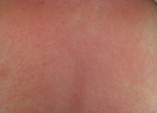 Immunopathologie cutanée