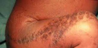 Incontinentia pigmenti