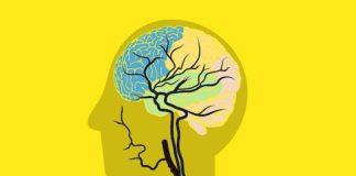 Prise en charge de l'infarctus cérébral aigu