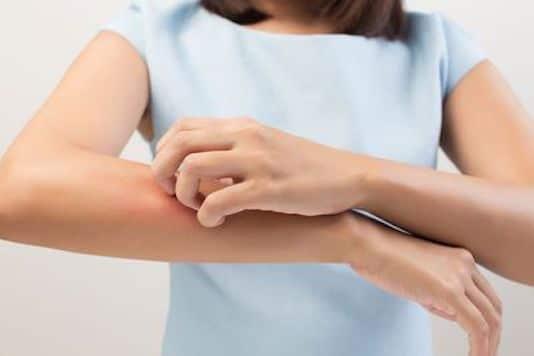 Infections bactériennes cutanées superficielles folliculaires et non folliculaires