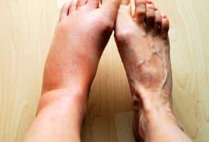 Formes anatomo-cliniques de l'inflammation