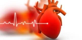Insuffisance cardiaque chronique