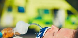 Intubation difficile