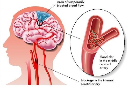 Physiopathologie de l'ischémie cérébrale