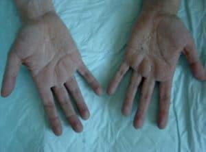 Kératodermies palmoplantaires (Suite)