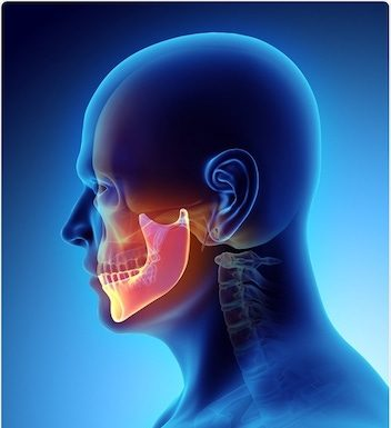 Kystes du maxillaire
