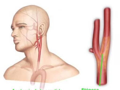 Lésions athéromateuses des artères extra- et intracrâniennes
