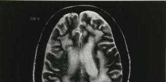 Leucoencéphalopathie multifocale progressive