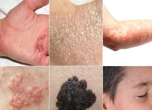 Lichen plan et dermatoses lichénoïdes