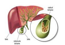 Lithiase vésiculaire