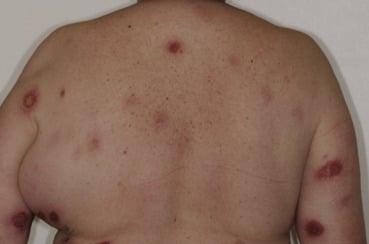 Lymphomes cutanés épidermotropes (Suite)