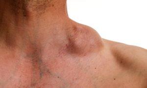 Lymphomes cutanés épidermotropes
