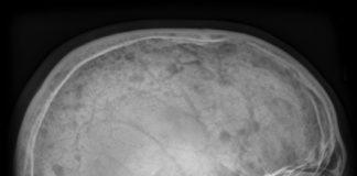 Maladie de Paget osseuse