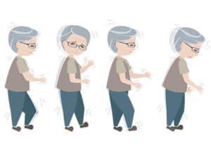 Aspects cliniques et thérapeutiques de la maladie de Parkinson (Suite)