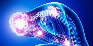 Manifestations ostéoarticulaires des pustuloses, acnés et syndromes apparentés
