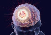 Manifestations psychiatriques des tumeurs cérébrales : approche clinique et thérapeutique